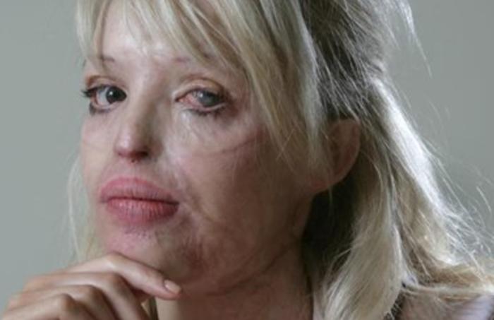 Элеонора Кондратюк после нападения